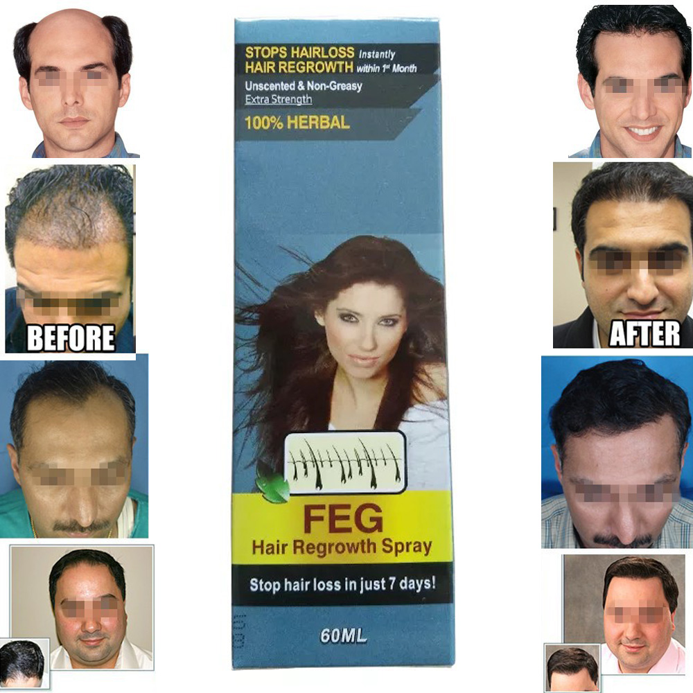 Alerana - spray against hair loss: reviews, application, composition, instruction and description