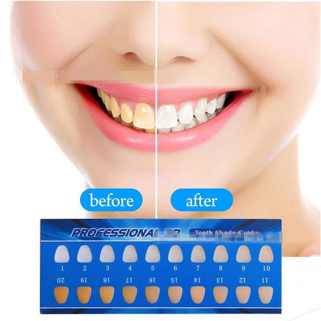 Teeth Whitening Kit Tooth Whitener Led Light Home Oral Care Dental